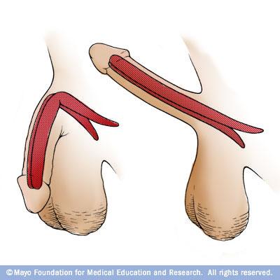 semi rigid penile implant